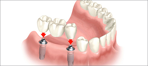 how to know if dental implant is successful