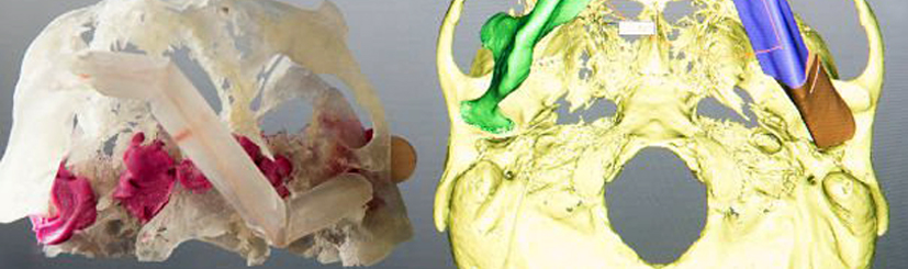 3-D-printed models revolutionise oral and maxillofacial surgery