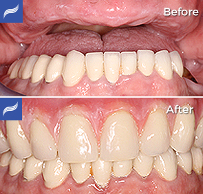 Fix-Hybrid-Dentures-and-Overdentures-01