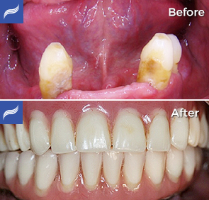 Fix-Hybrid-Dentures-and-Overdentures-02