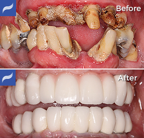 Fix-Hybrid-Dentures-and-Overdentures-04