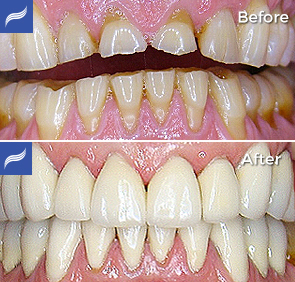 restoration-porcelain-zirconium-crowns-06