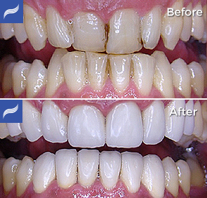 restoration-porcelain-zirconium-crowns-08