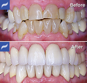 restoration-porcelain-zirconium-crowns-10
