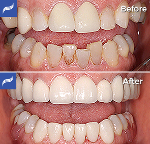restoration-porcelain-zirconium-crowns-11