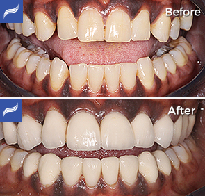 restoration-porcelain-zirconium-crowns-12