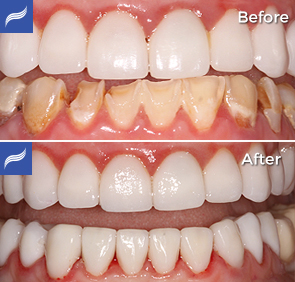 restoration-porcelain-zirconium-crowns-14